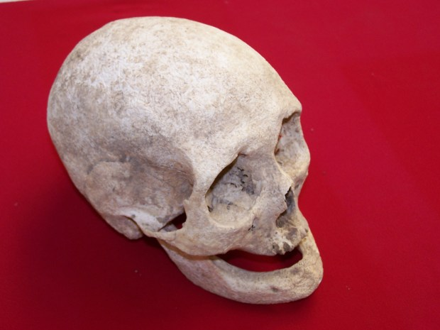 The skull of an elderly lady from Late Roman Baldock