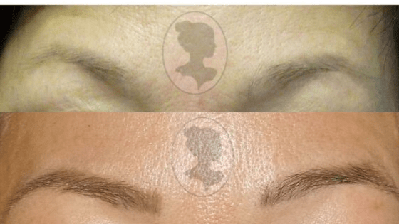 Permanent Makeup before and after in London, Ontario
