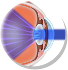 5 Cataract Facts and Myths
