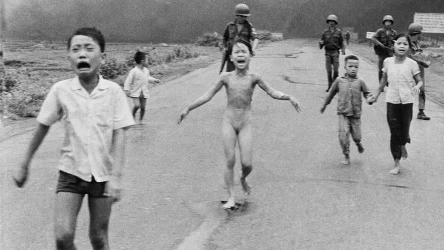 Vietnamese children injured after napalm attack, AP photo