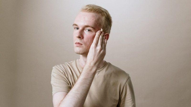 Homme : comment choisir sa crème hydratante ?