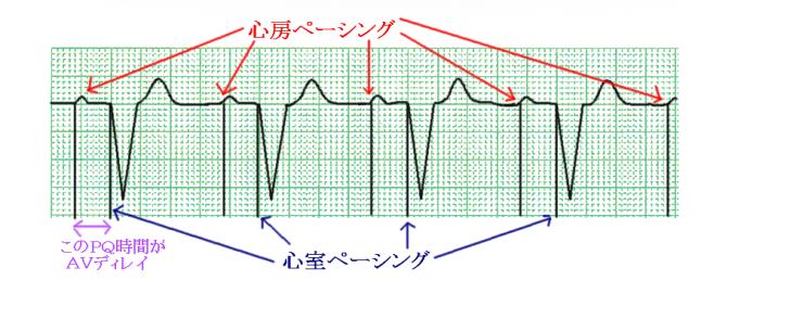 %e5%bf%83%e9%9b%bb%e5%9b%b3%e3%80%80ddd