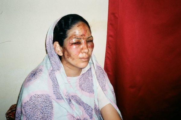 Día Internacional de los Derechos Humanos: La pandemia ha agravado las violaciones de los DDHH en el Sáhara Occidental