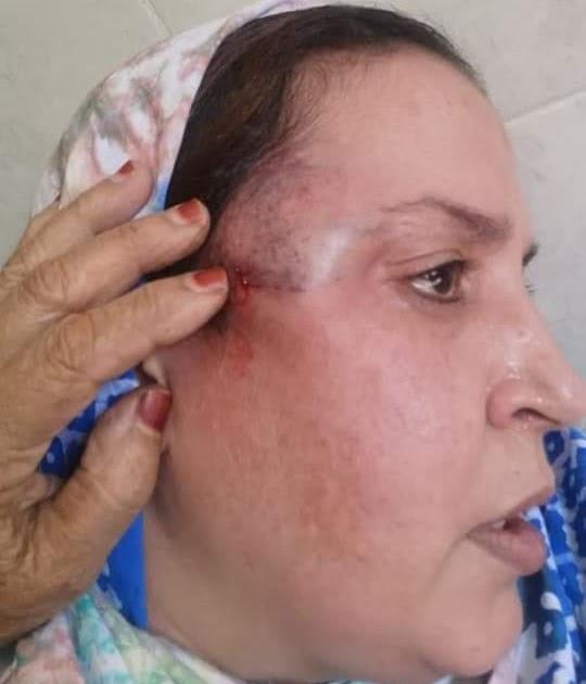 Varios policías marroquíes dan una paliza brutal a la activista saharaui Sultana Jaya