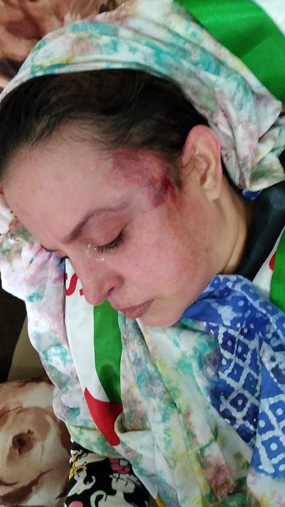 LLAMAMIENTO URGENTE PARA PROTEGER A LA POBLACION CIVIL SAHARAUI EN LAS ZONAS OCUPADAS DEL SAHARA OCCIDENTAL – Delegación del Frente Polisario para España