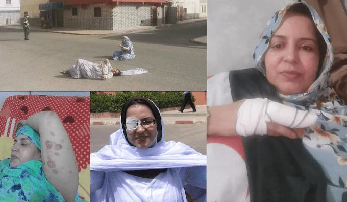 Carta abierta de CODESA para proteger a la activista saharaui Sultana Khaja y su familia
