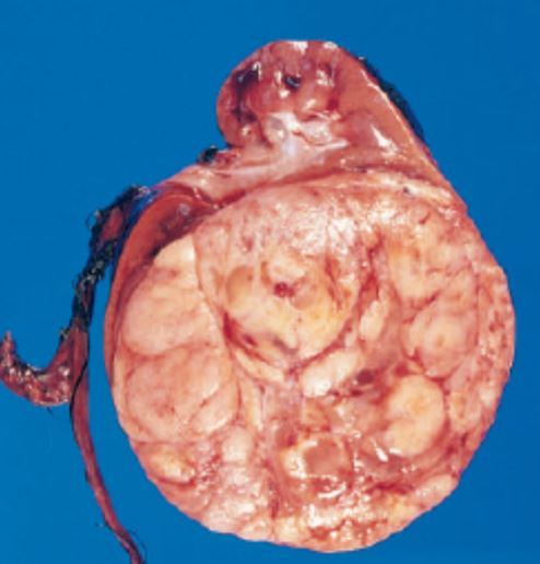 Read more about the article Wilms Tumor (Nephroblastoma): Pathogenesis, Morphology