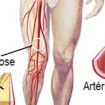 What dietary factors may decrease risk for atherosclerosis