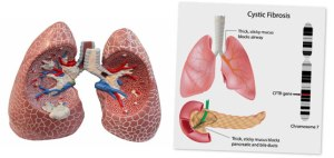 What Is Cystic Fibrosis;Symptoms,Diagnosis And Treatment