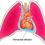 What Is Pericardial Effusion;Causes,Symptoms And Treatment