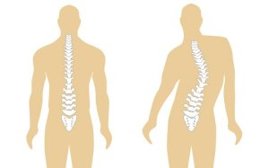 What Is Scoliosis;Prognosis,Treatment And Etiology