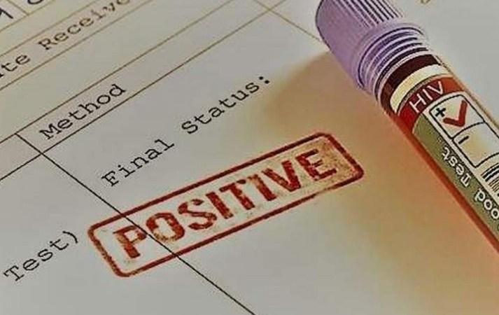 Datos de 14.200 personas con VIH positivo se han filtrado en la red