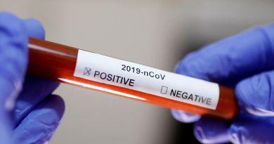 Bahia_ Sesab registra primeira morte decorrente do novo coronavírus