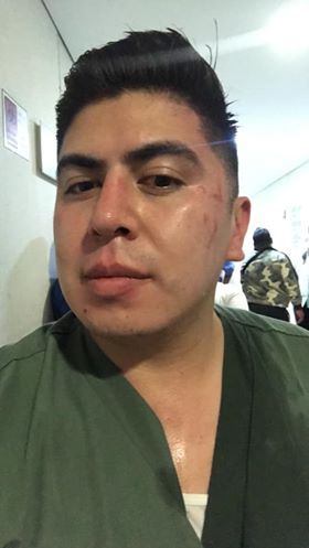 Tras enterarse de que su familiar murió a causa de COVID-19, golpean a personal médico 1
