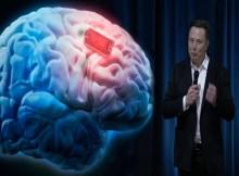 Neuralink plan para implantar un chip en el cerebro
