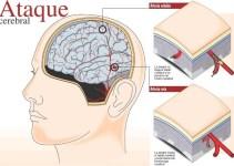 fff4548682445ceca36c12620f894d26 - El optimismo está asociado con un menor riesgo de derrame cerebral