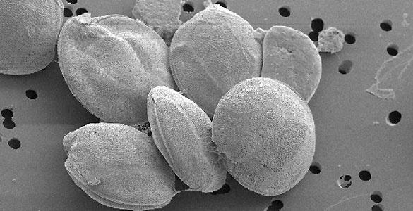3b77d3f73b59742412f393cd0d264b14 - Descubren una nueva especie de alga tóxica en Canarias