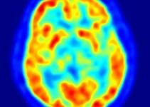 e071acc32c7e4befc3022bf1715b6773 - Descubren una variación genética que protege contra el Parkinson
