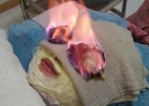 8d362ef7c56b784926dd8147f5129500 - #Video Lo último en tratamientos de belleza: prenderle fuego a la cara