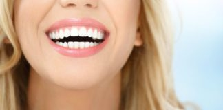 Sonrisa implante dental