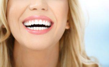 Sonrisa implante dental