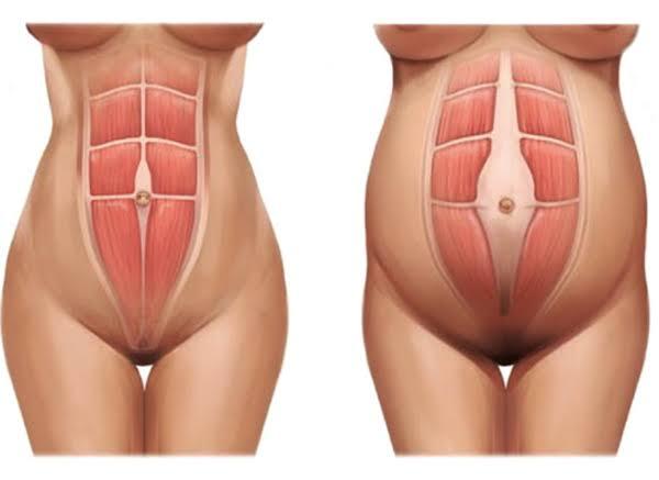 Você sabe o que é diástase abdominal?