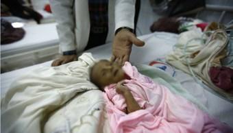 Doctor revisa a un bebé que padece desnutrición en Yemen; el país podría sufrir una crisis de hambruna (AP, archivo)
