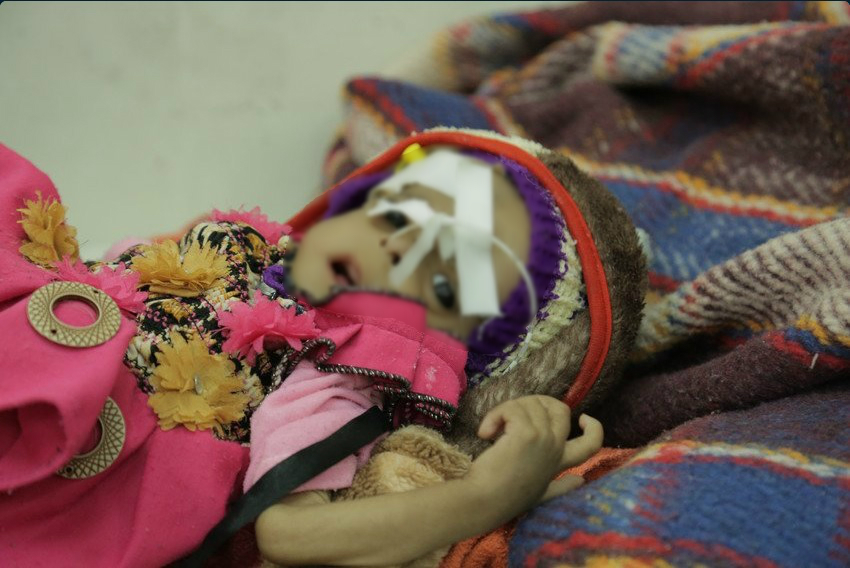 Menor de edad que padece desnutrición en Yemen; el país podría sufrir una crisis de hambruna (Twitter @savechildrenuk)