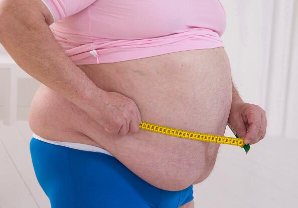 Siete de cada 10 personas en México padecen sobrepeso y obesidad. De ellas, el 3% tiene obesidad mórbida. (Getty images, archivo)