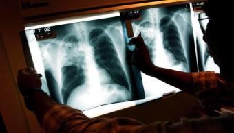 Un doctor examina una lámina de rayos X de paciente infectado con tuberculosis; en Nuevo León la enfermedad pasa desapercibida (Getty Images, archivo)