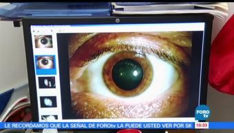 Queratocono, Enfermedad, Ocular, Perdida, Vision, Noticieros Televisa,