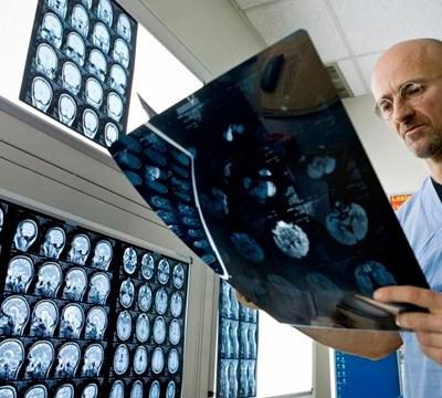El primer transplante de cabeza humana se realizará este año