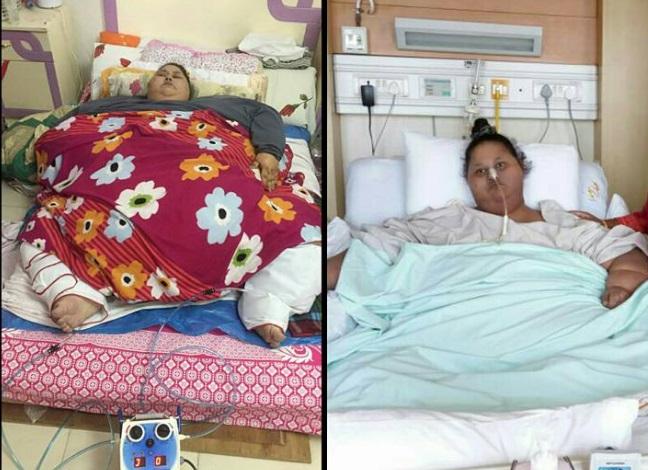 La egipcia Eman Ahmed Abd El Aty ha sido considerada la mujer con más peso en el mundo (Foto: Aparna Govil Bhasker/Facebook)