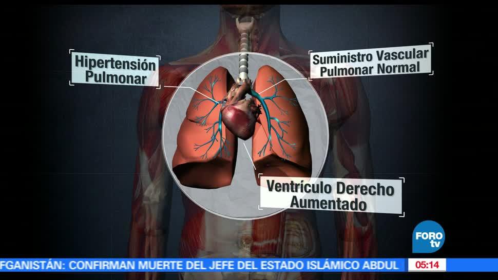 México, personas, padecen, enfermedades
