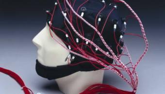 Electroencefalograma, Persona inimputable, Trastorno mental, Esquizofrenia, Psiquiatra, Psiquiatría