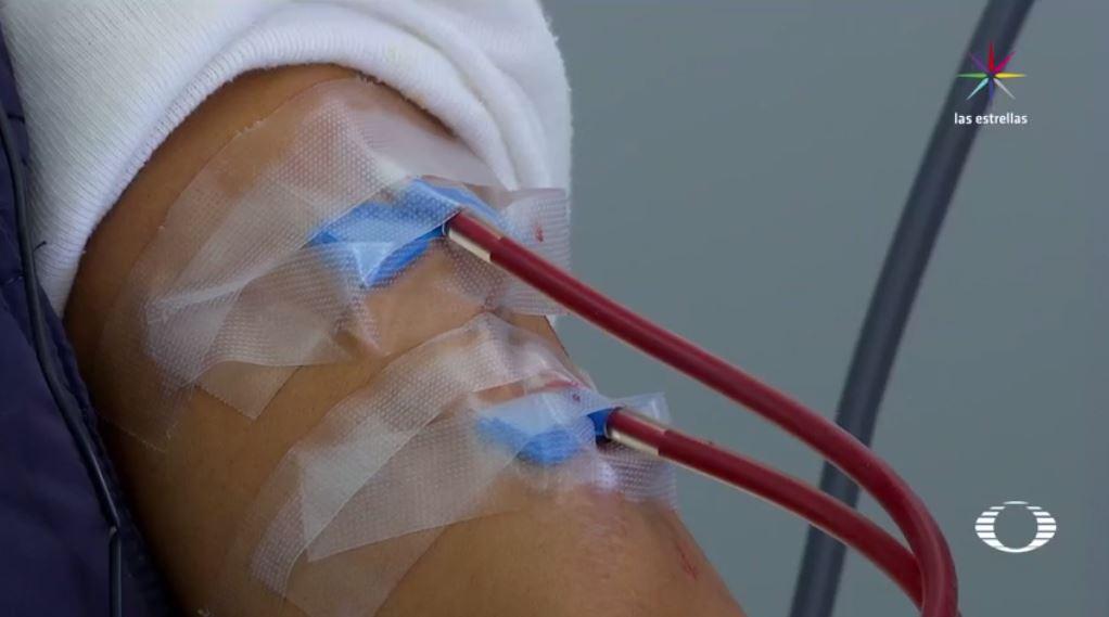 Imss, transfusión de sangre contaminada con vih, indemnización, hospital la raza, litigio, scjn,