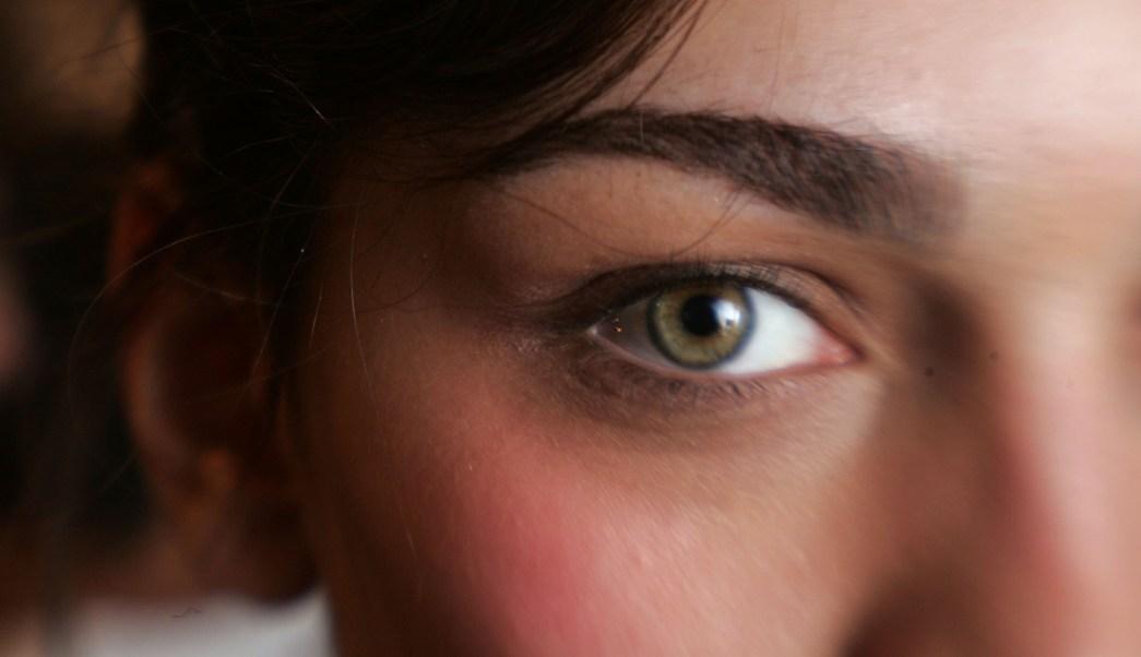 ojos claros, iris, melanoma, cáncer