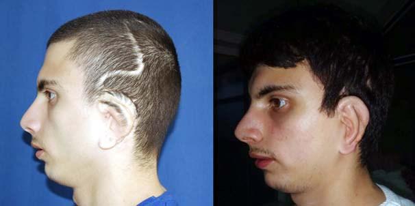 La primera operación en el mundo de implante de orejas a un hombre que nació sin ellas (Foto: (Foto: newsturk))