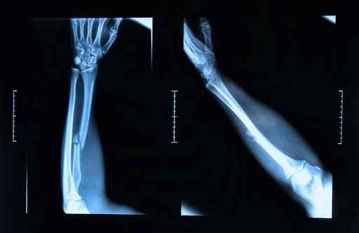 Radiografía, rayos x, huesos, fractura, niños de cristal, salud