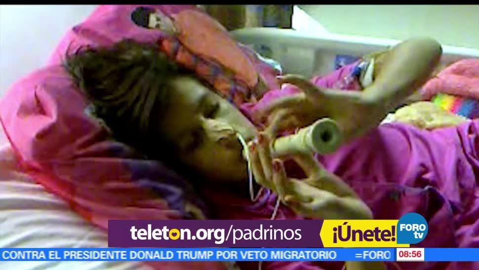 centros de rehabilitación, inclusión infantil, Teletón, adolescentes con discapacidad