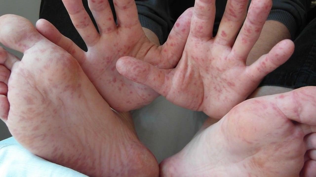 Granos en palma de manos y pies