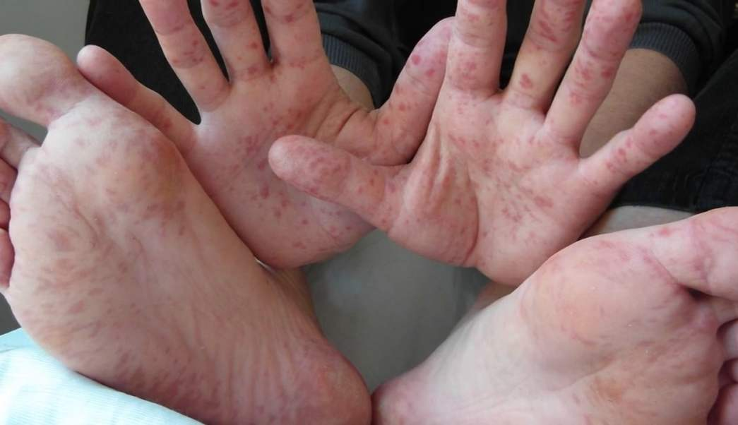 virus de coxsackie, tratamiento, virus, coxsackie, niños, sintomas