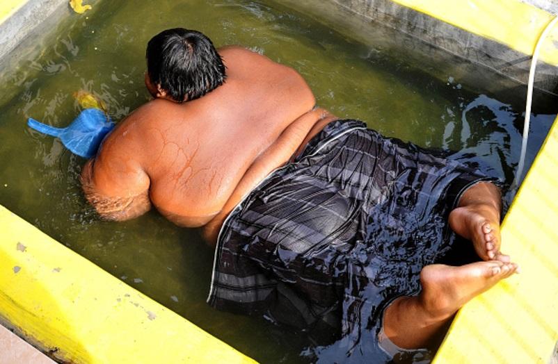 Unos 2,200 millones de personas sufren sobrepeso u obesidad en el mundo (Getty Images)