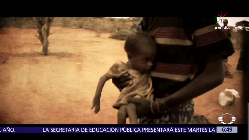 Somalia, 20 mil niños, riesgo de morir, crisis humanitarias, alimentos, medicinas