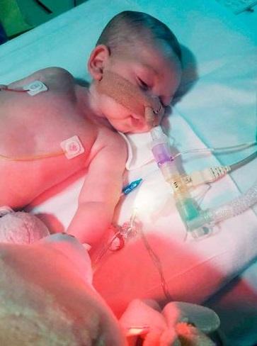 Hay 10% de que una medicina experimental funcione para Charlie (Foto: charliesfight.org)