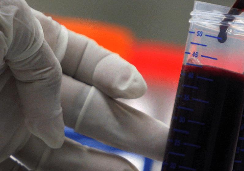 Científico maneja una muestra de sangre