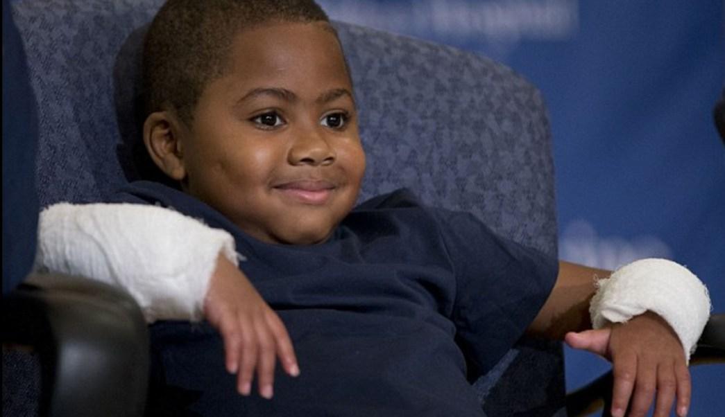 trasplante de ambas manos, zion harvey, ambas manos, trasplante, manos, carta