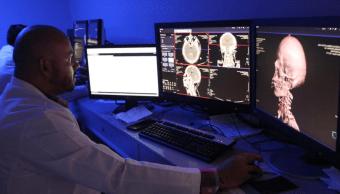 Médicos del IMSS operan tumores con mapeo cerebral y paciente despierto