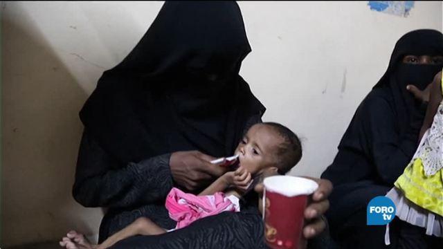 Mayor epidemia de cólera en Yemen
