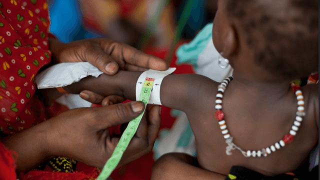 Aumenta número niños raquíticos África OMS